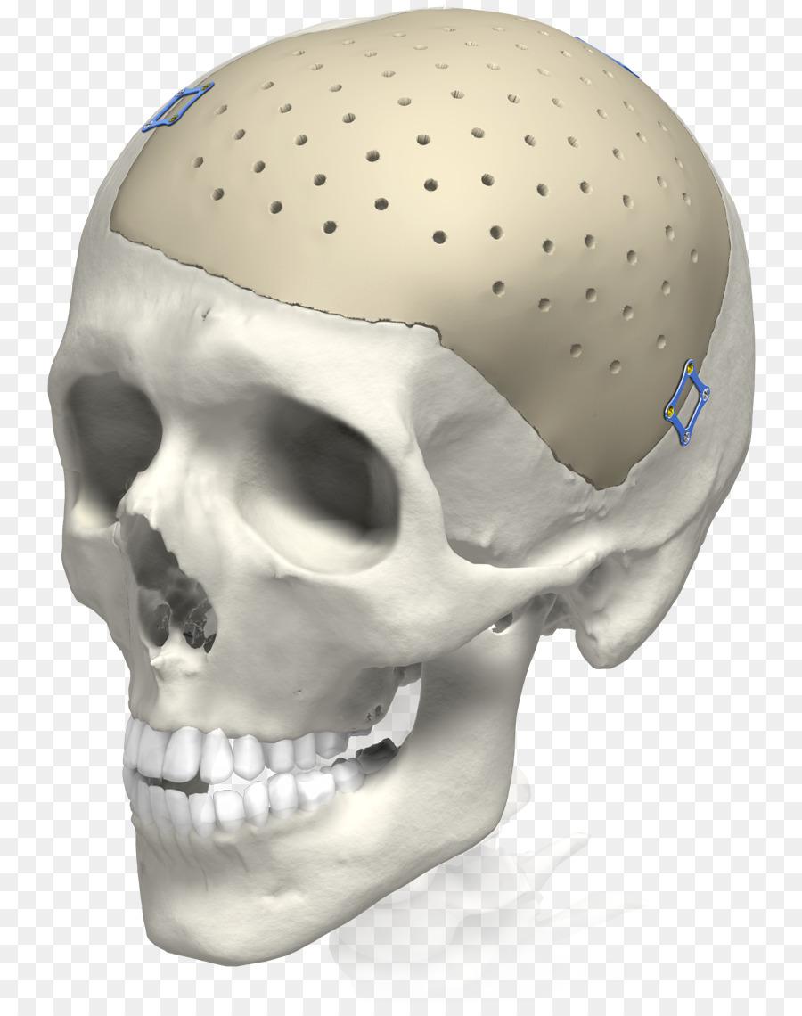 Implan, Tengkorak, 3D Percetakan gambar png